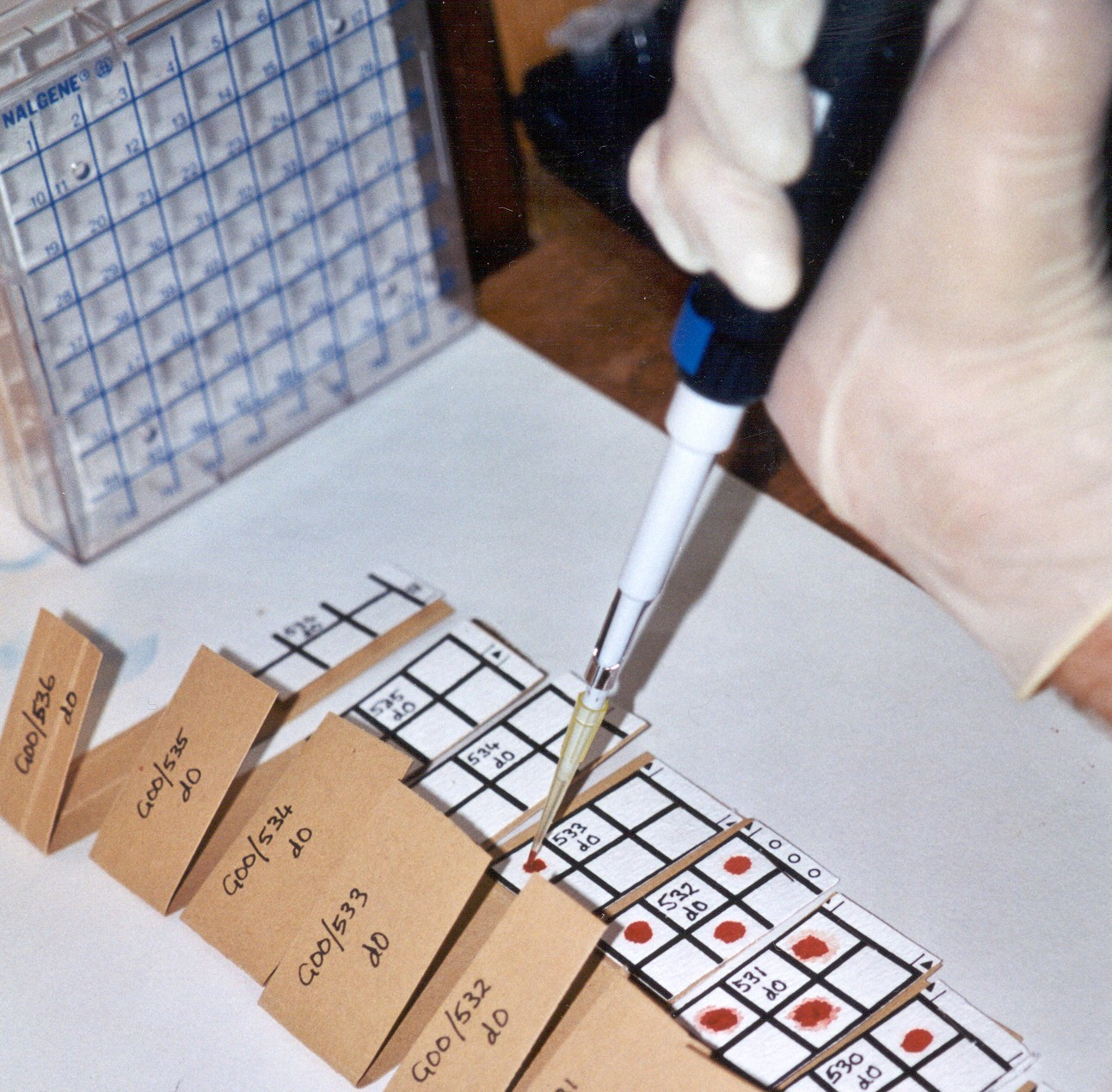 ELISA test- Image courtesy of Colin Sutherland